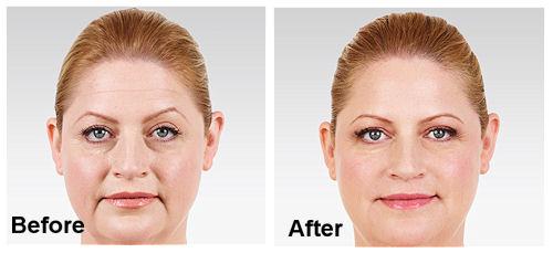 Timarron Family Medicine - Cosmetic Treatments